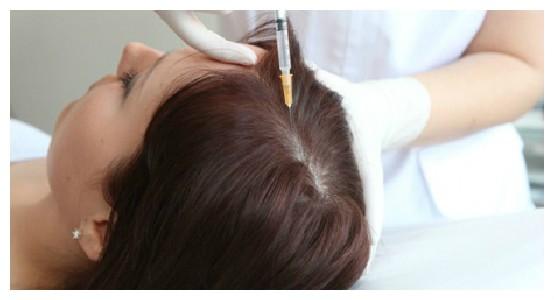 Лечение выпадения волос настойкой красного перца