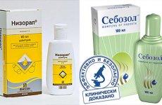 Как избавиться от жирной перхоти: лечение, шампунь, советы