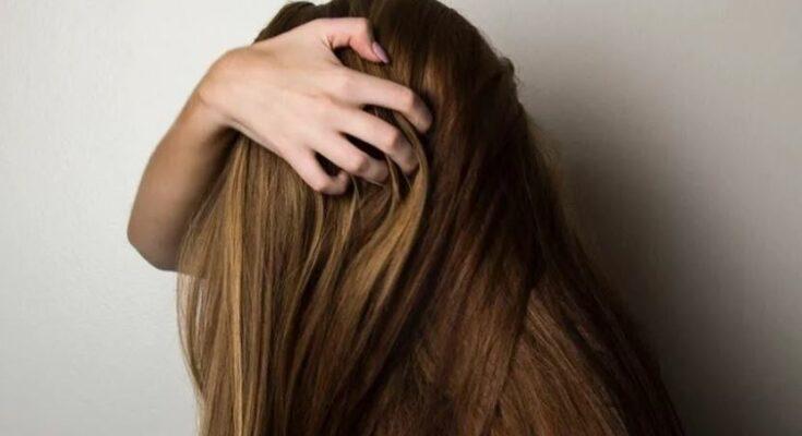 Лосьоны для волос от перхоти