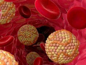 Как снизить вредный холестерин в крови